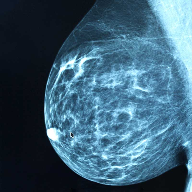breast imaging x-ray