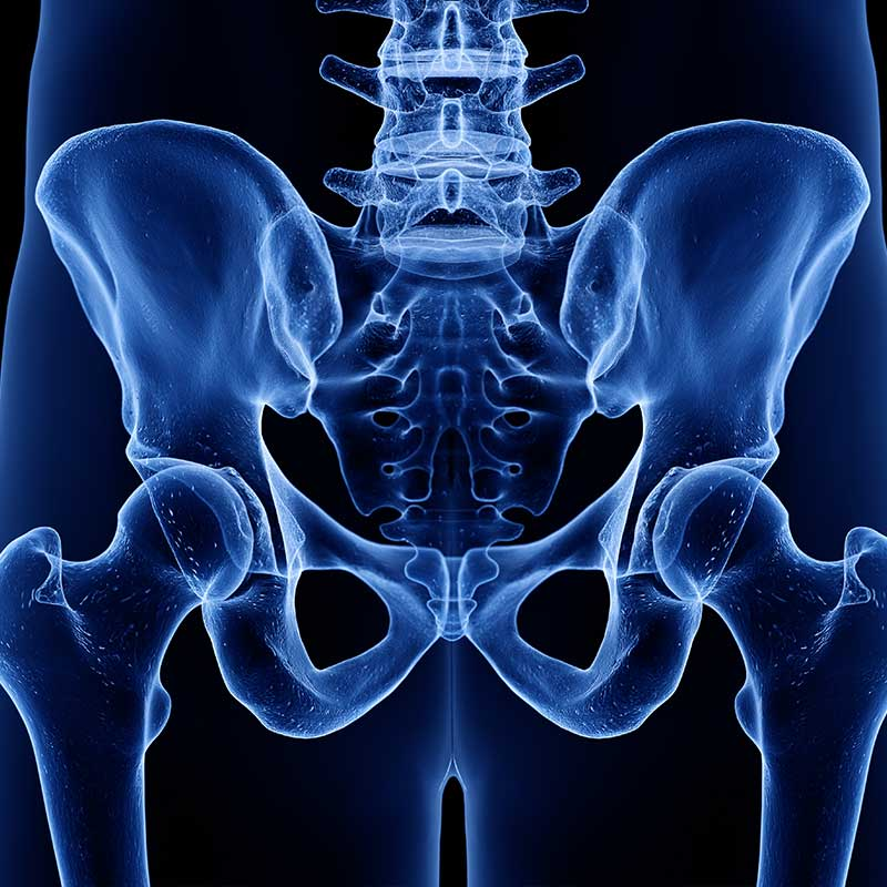 x-ray of pelvis, gyn-related procedures