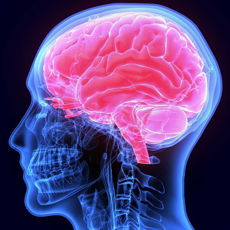 brain magnetic resonance imaging graphic rendering