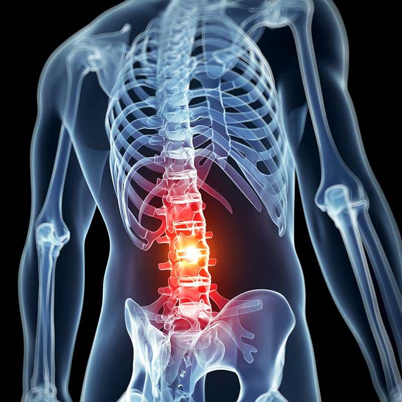 graphic rendering of pain management procedures