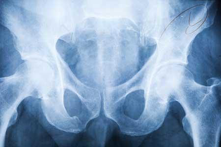 pelvic MRI